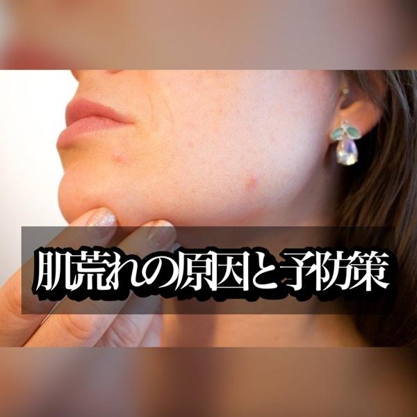肌荒れの原因と予防策